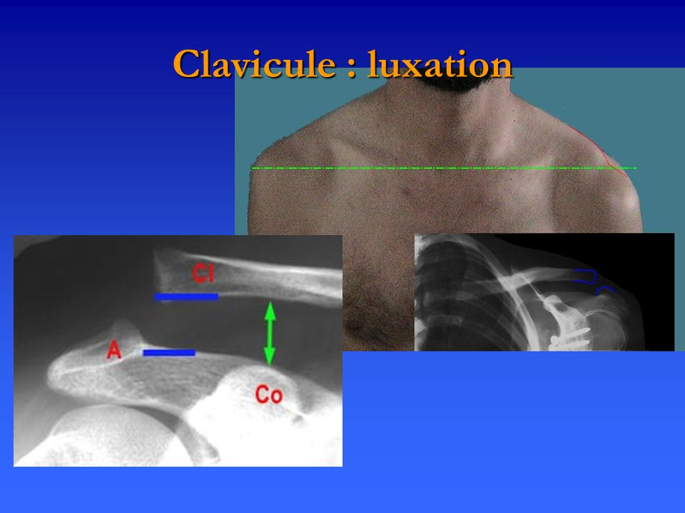 Clavicule : luxation