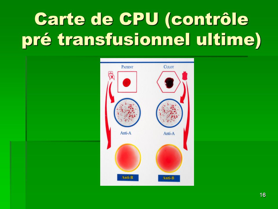 Carte de CPU (contrôle pré transfusionnel ultime)