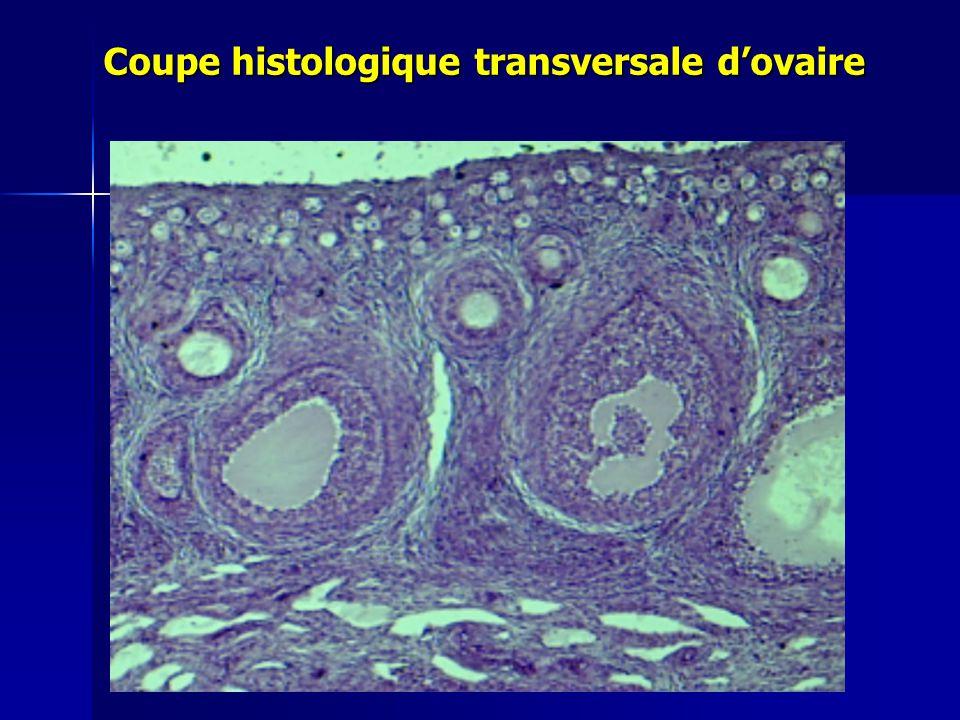 Coupe histologique transversale d'ovaire