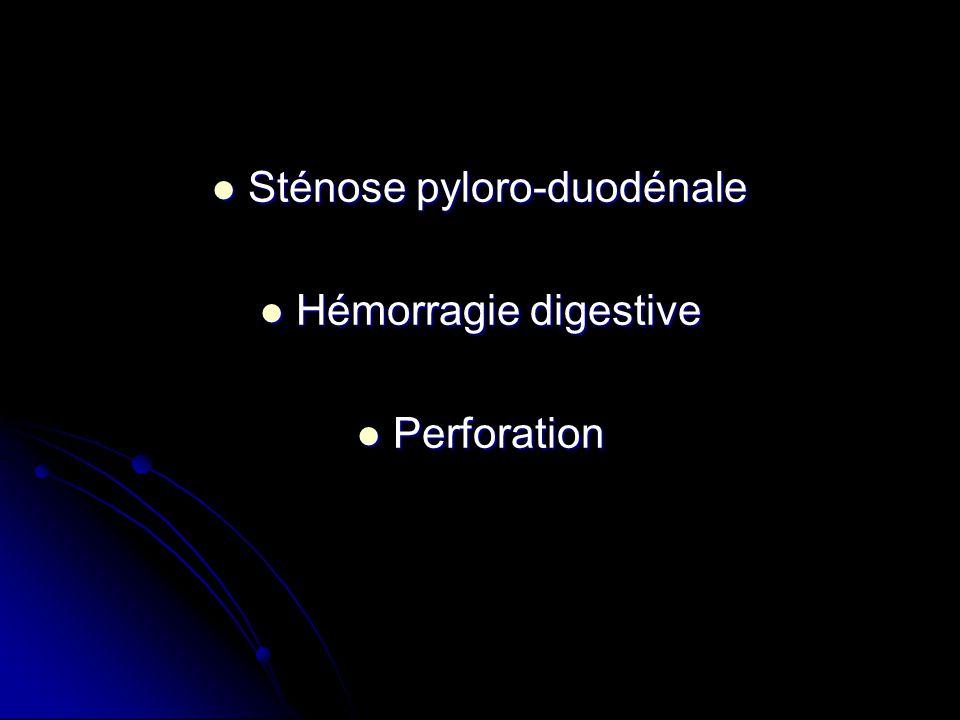 Sténose pyloro-duodénale