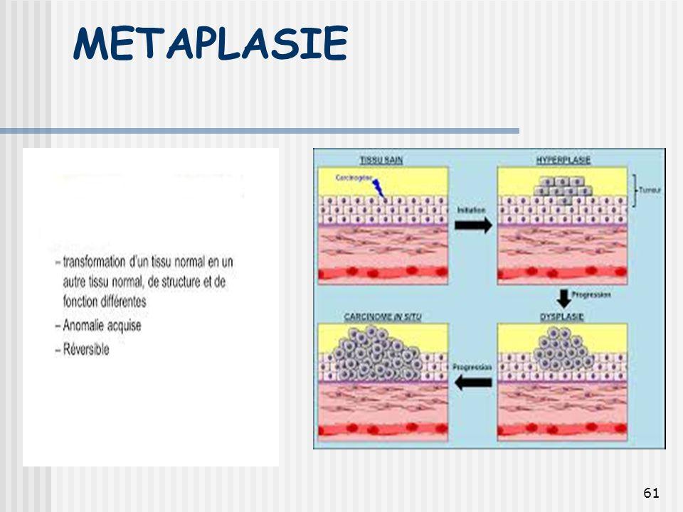 METAPLASIE