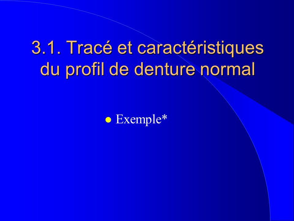 3.1. Tracé et caractéristiques du profil de denture normal