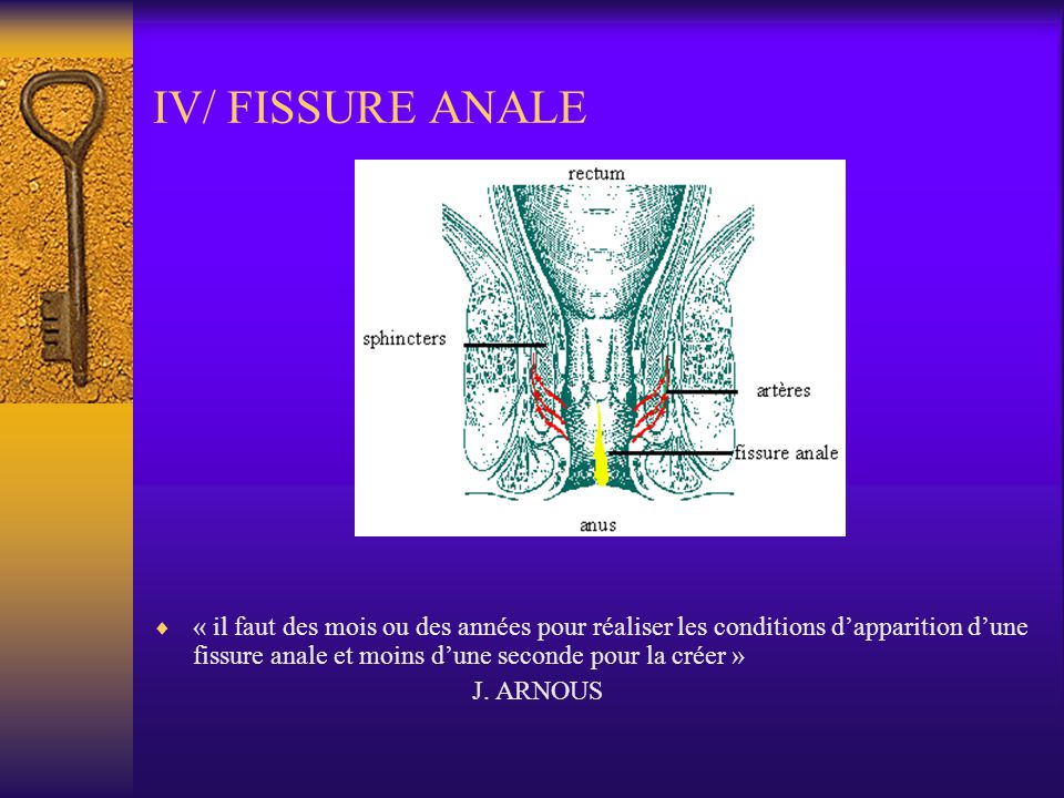 IV/ FISSURE ANALE