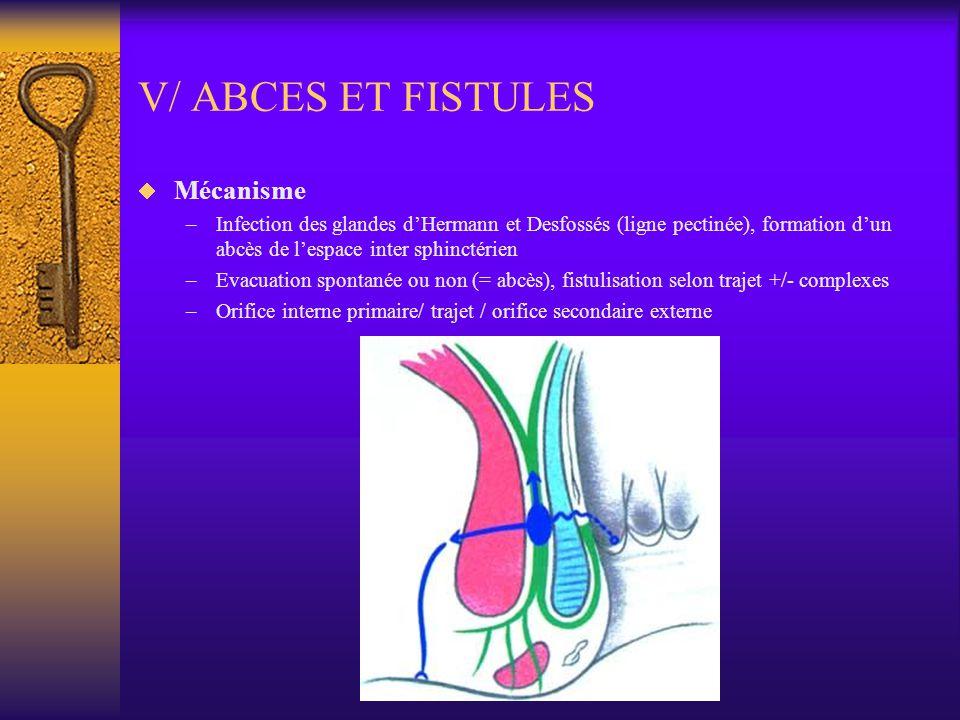 V/ ABCES ET FISTULES Mécanisme