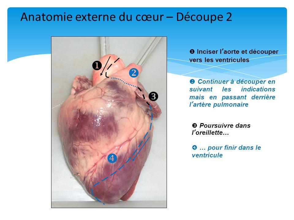 Anatomie externe du cœur – Découpe 2