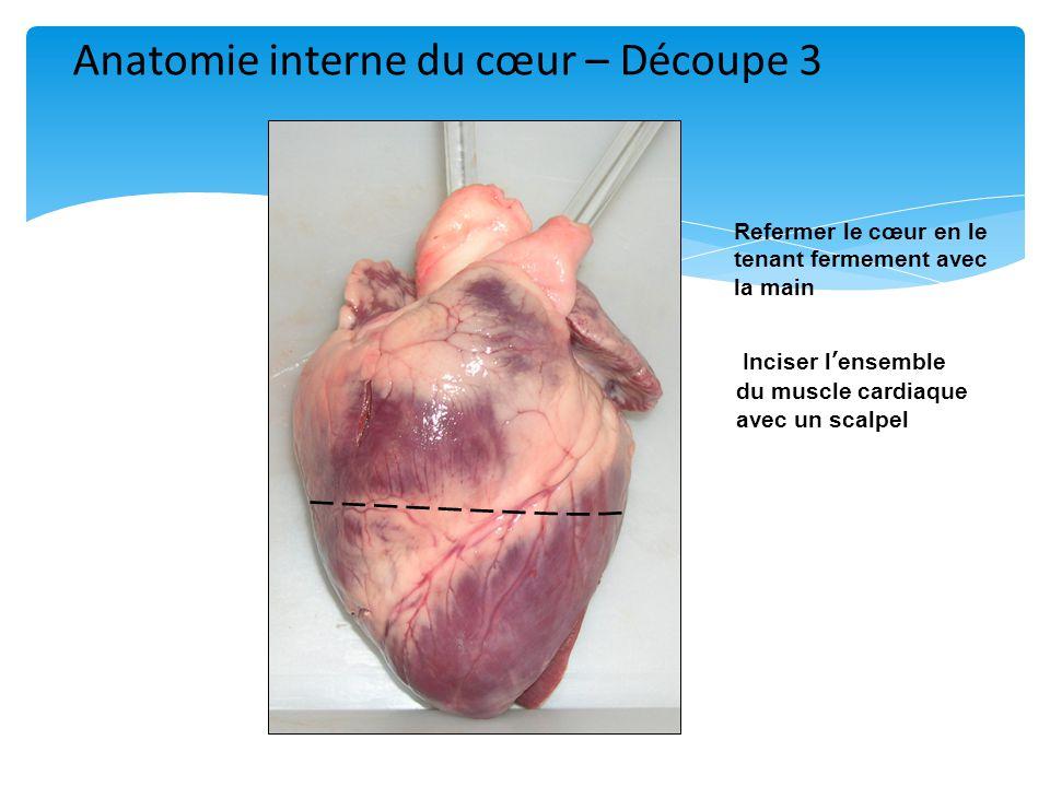 Anatomie interne du cœur – Découpe 3