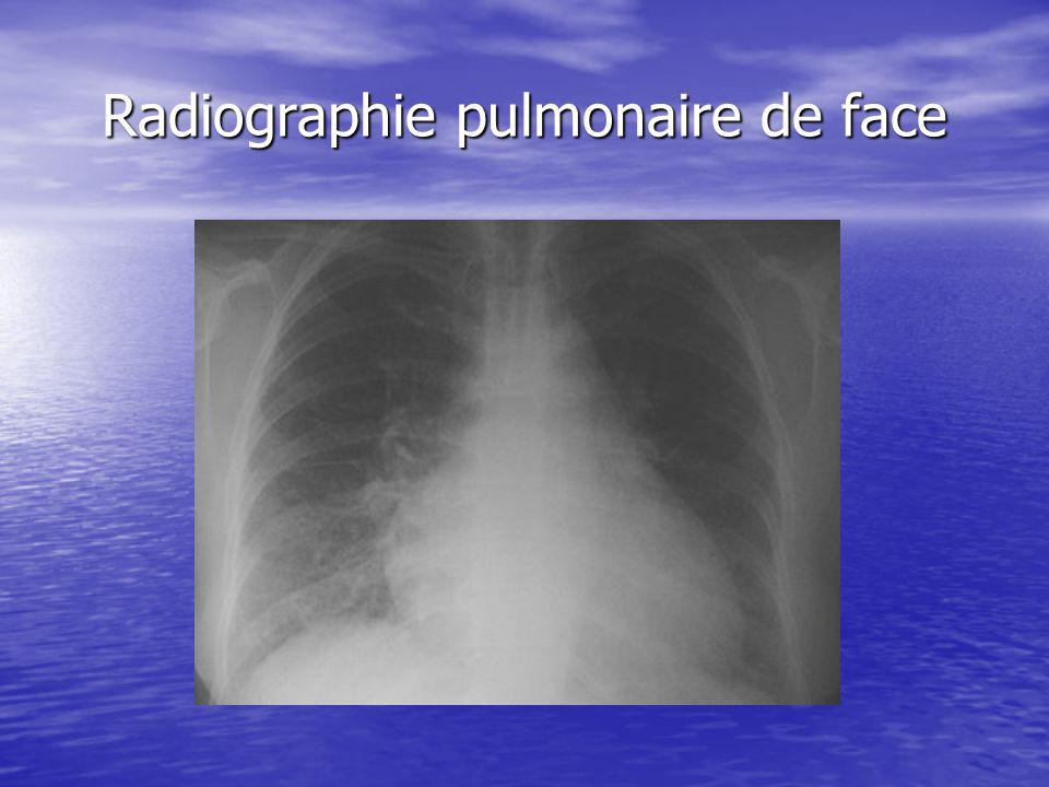 Radiographie pulmonaire de face