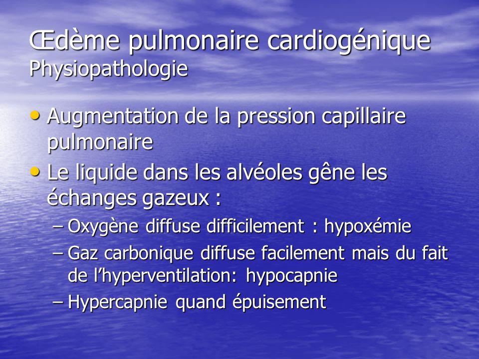 Œdème pulmonaire cardiogénique Physiopathologie
