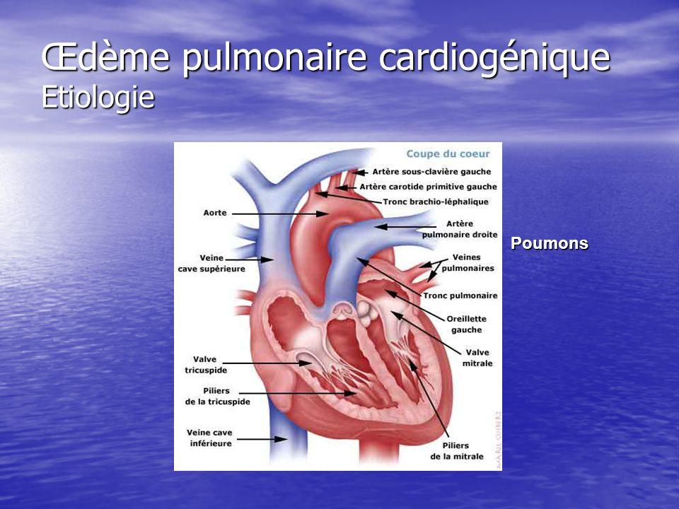 Œdème pulmonaire cardiogénique Etiologie