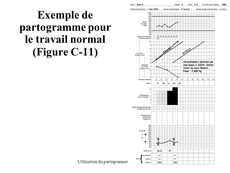 Exemple de partogramme pour le travail normal (Figure C-11)