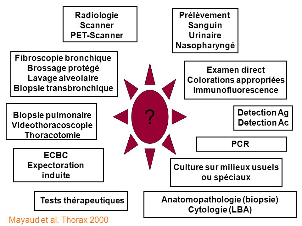 Castanier matthias desc r a med marseille ppt video - Prelevement sanguin sur chambre implantable ...