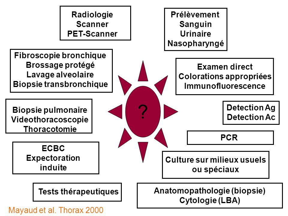 Castanier matthias desc r a med marseille ppt video - Prelevement sanguin sur chambre implantable ...