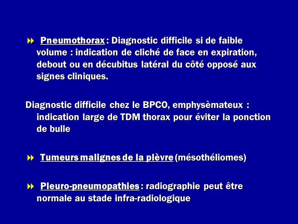 tumeur thoracique signes