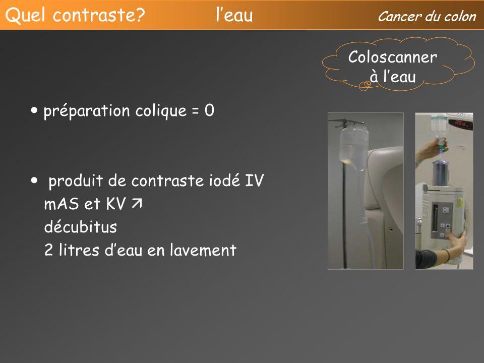 scanner du colon quel contraste pour quelles indications ppt video online t l charger. Black Bedroom Furniture Sets. Home Design Ideas