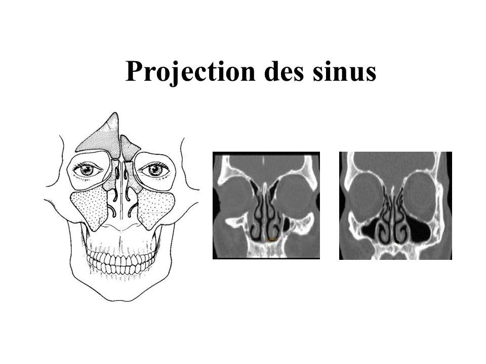 Projection des sinus