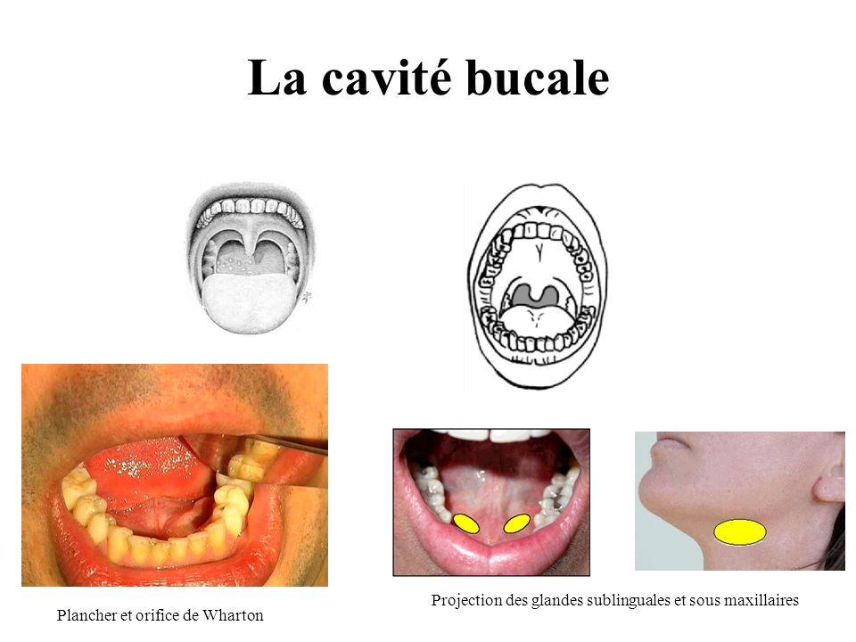 La cavité bucale Projection des glandes sublinguales et sous maxillaires.