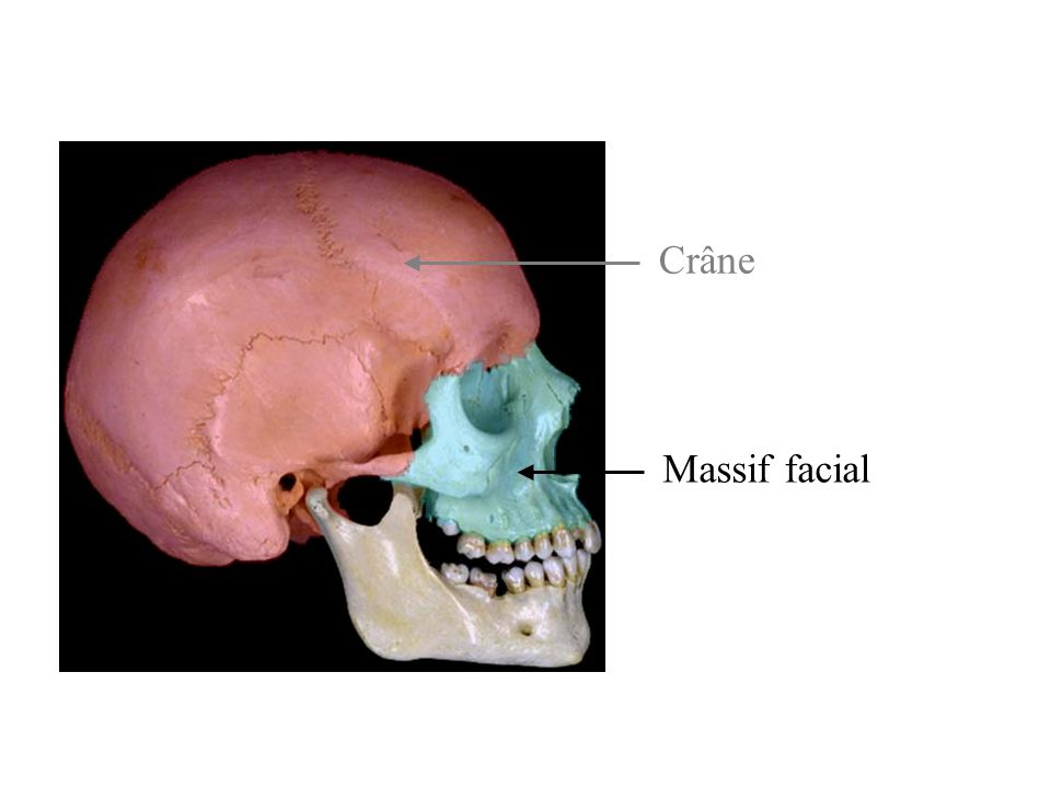 Crâne Massif facial
