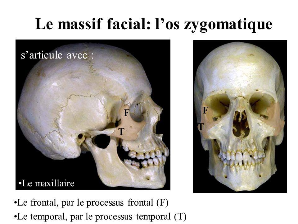 Le massif facial: l'os zygomatique