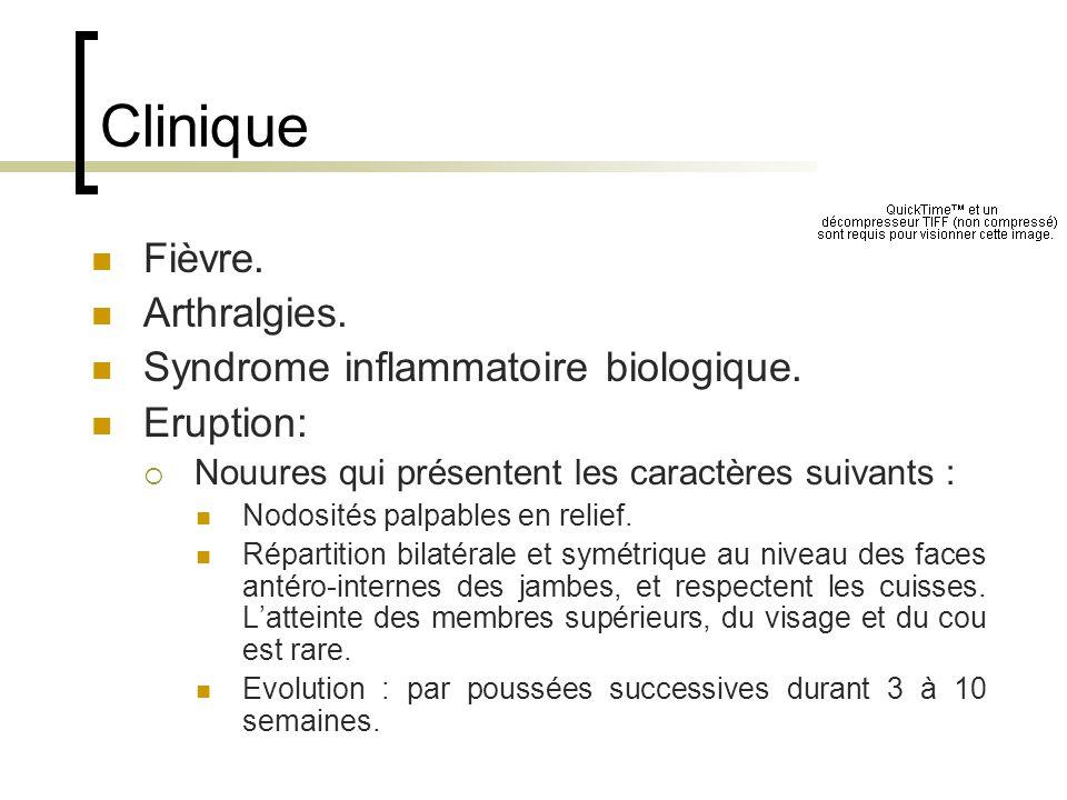 Clinique Fièvre. Arthralgies. Syndrome inflammatoire biologique.