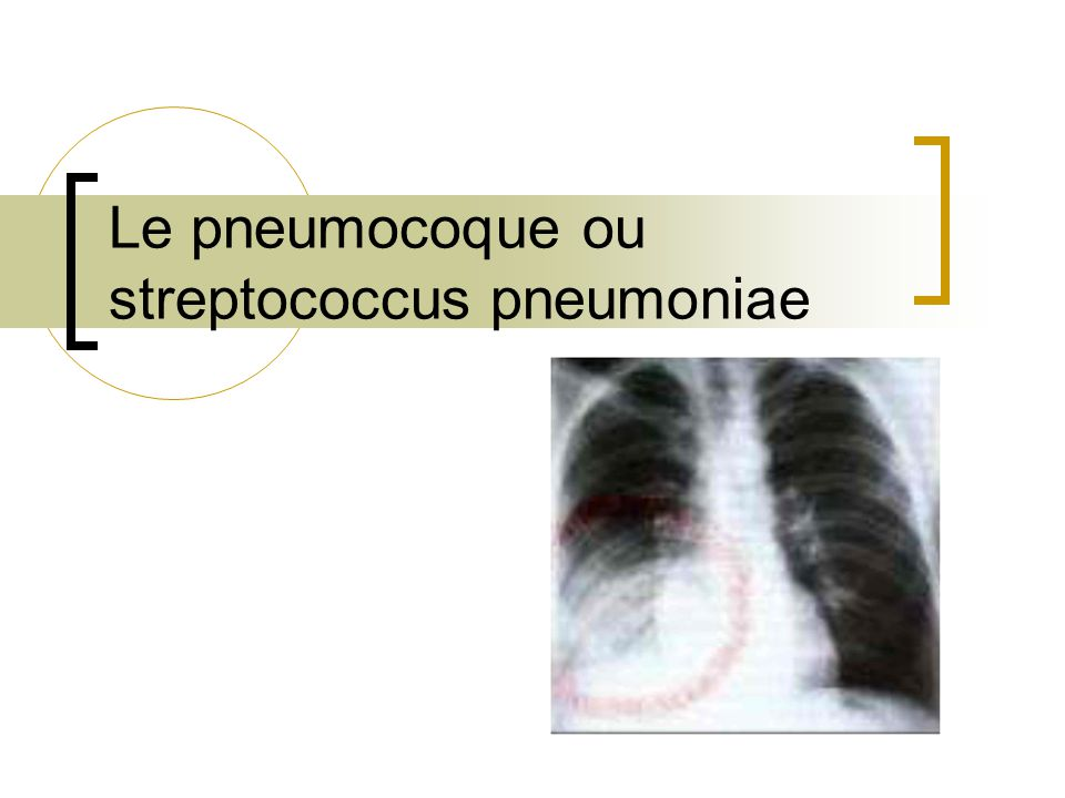 Le pneumocoque ou streptococcus pneumoniae