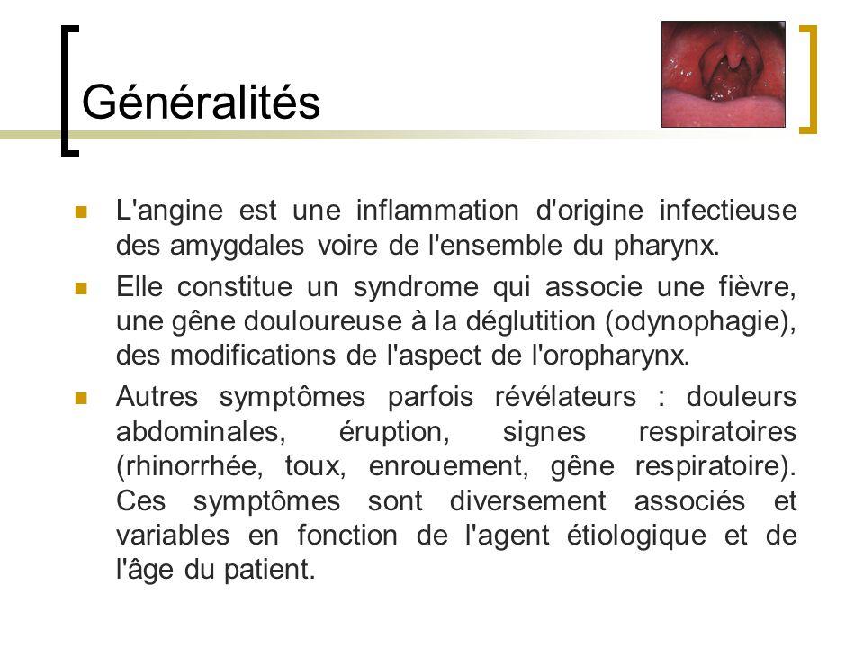 Généralités L angine est une inflammation d origine infectieuse des amygdales voire de l ensemble du pharynx.