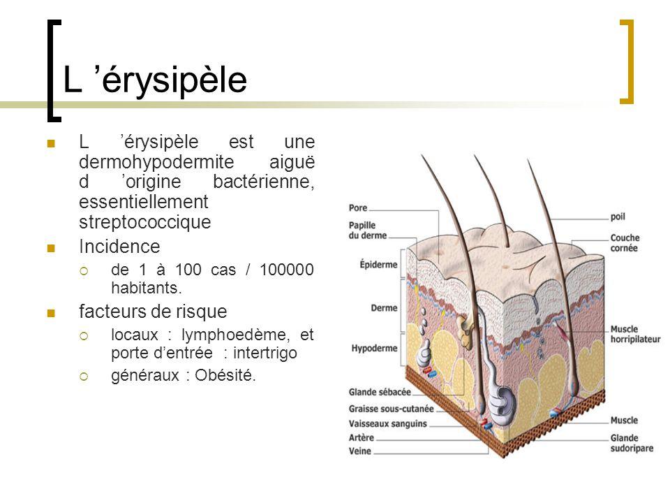 L 'érysipèle L 'érysipèle est une dermohypodermite aiguë d 'origine bactérienne, essentiellement streptococcique.