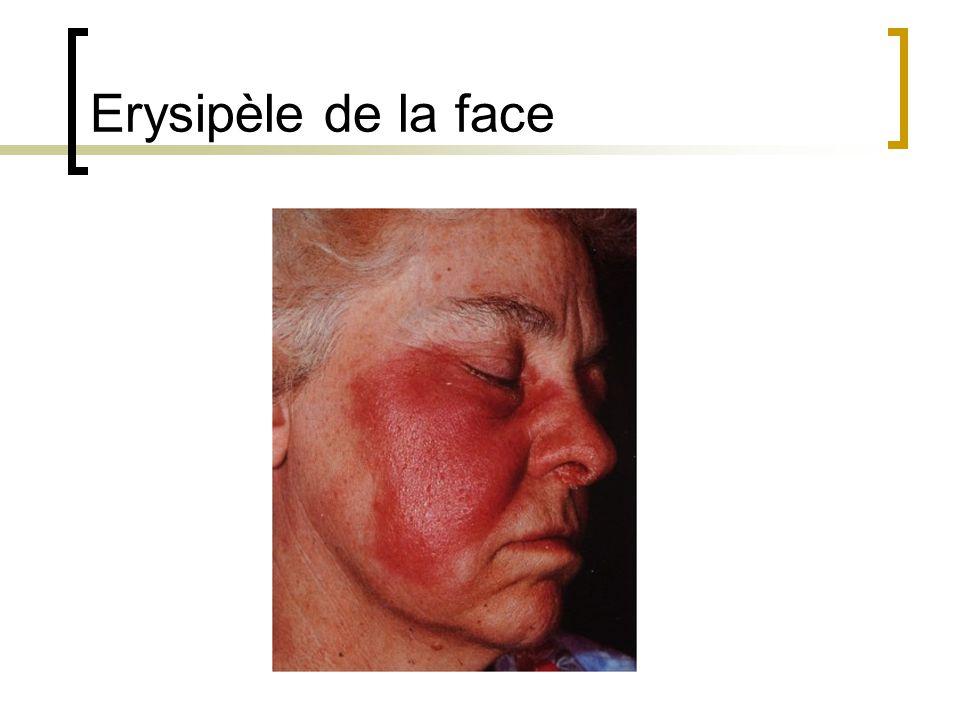 Erysipèle de la face