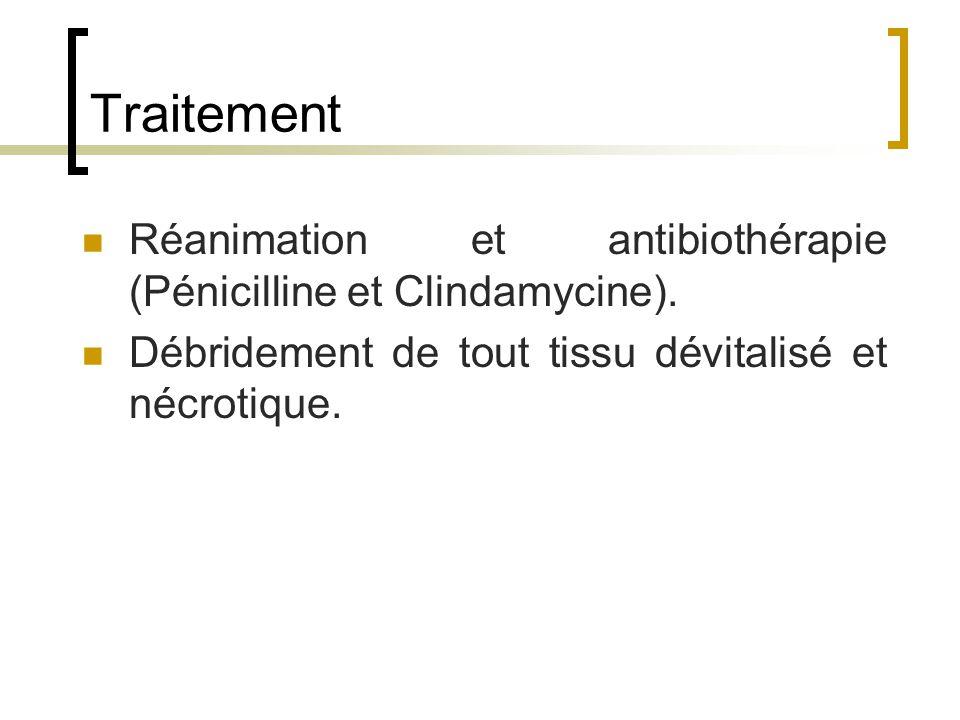Traitement Réanimation et antibiothérapie (Pénicilline et Clindamycine).