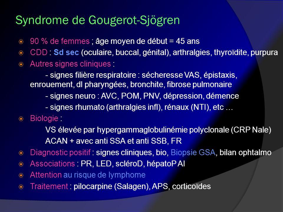 Syndrome de Gougerot-Sjögren