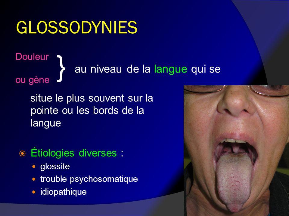 } GLOSSODYNIES au niveau de la langue qui se