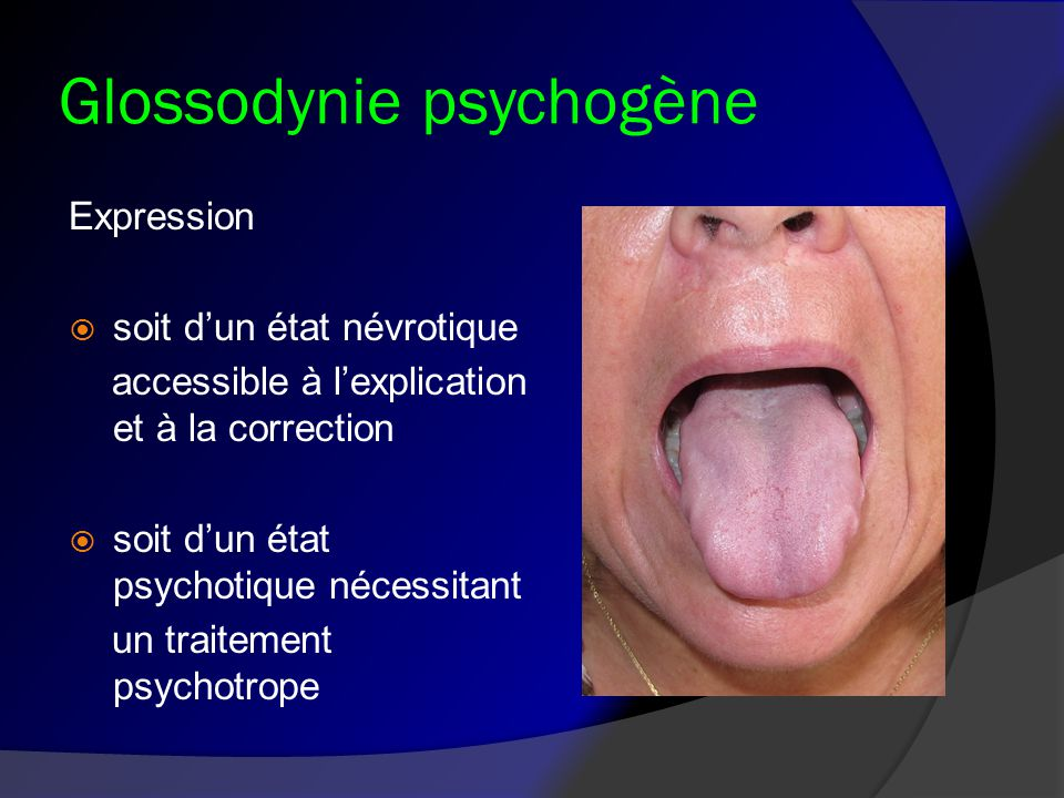 Glossodynie psychogène