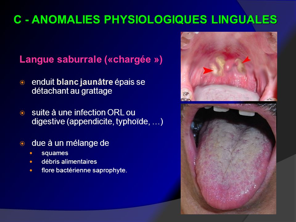 C - ANOMALIES PHYSIOLOGIQUES LINGUALES