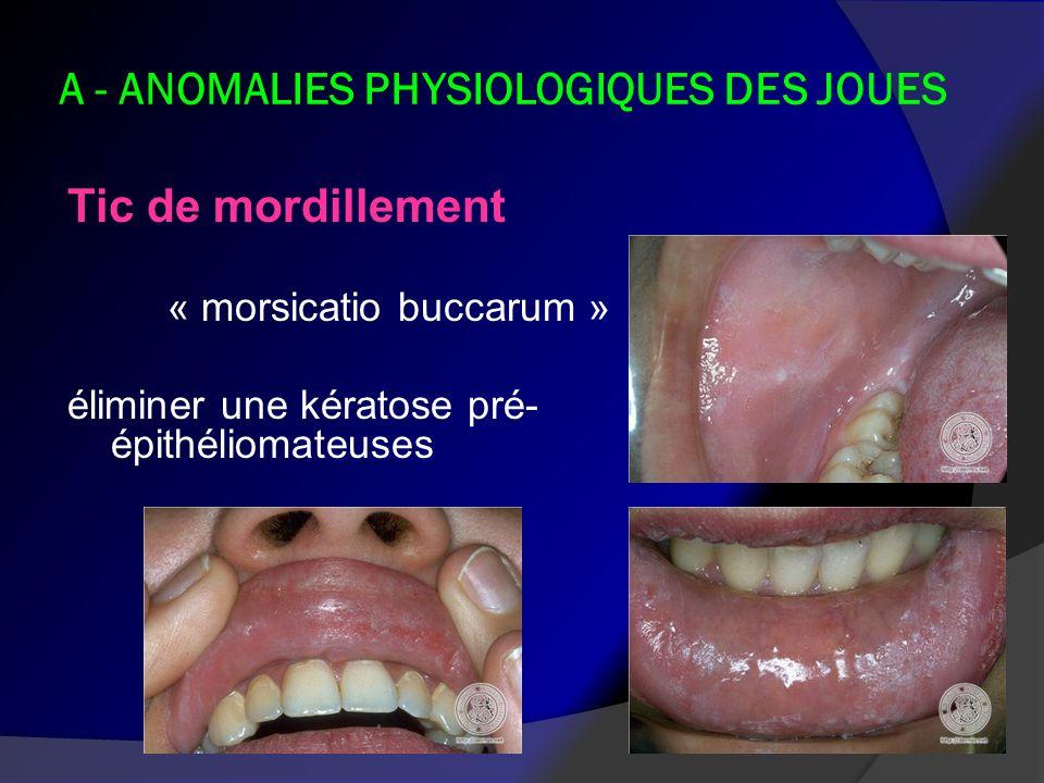 A - ANOMALIES PHYSIOLOGIQUES DES JOUES