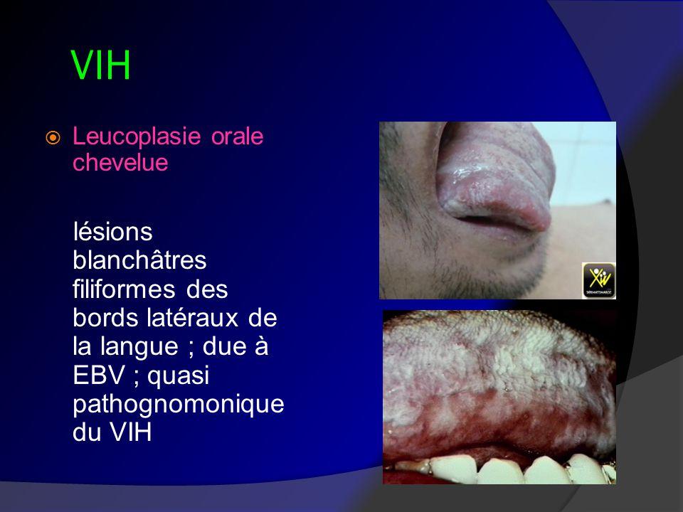 VIH Leucoplasie orale chevelue.