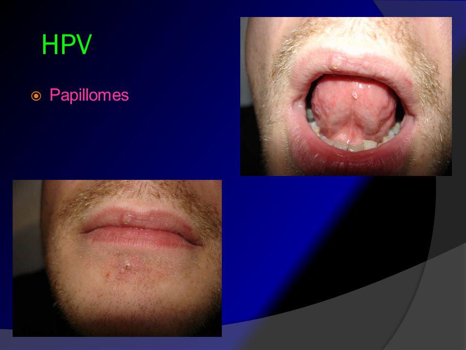HPV Papillomes
