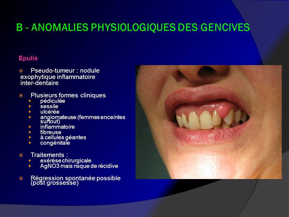 B - ANOMALIES PHYSIOLOGIQUES DES GENCIVES