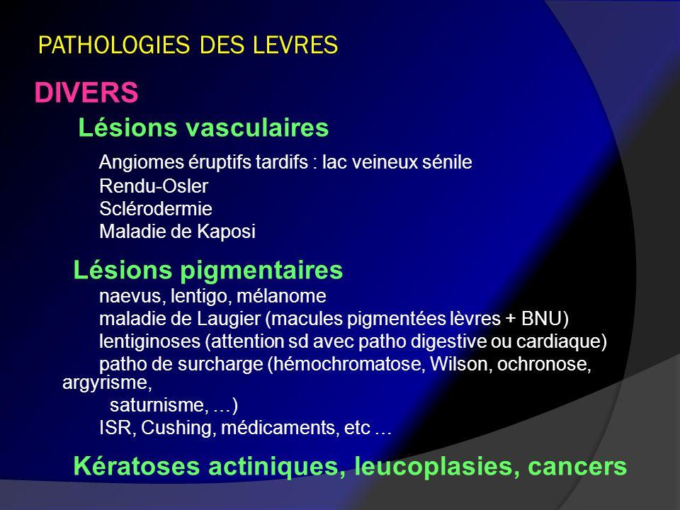 PATHOLOGIES DES LEVRES
