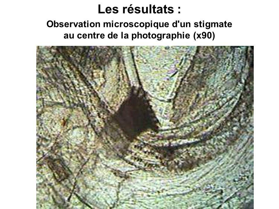 Observation microscopique d un stigmate