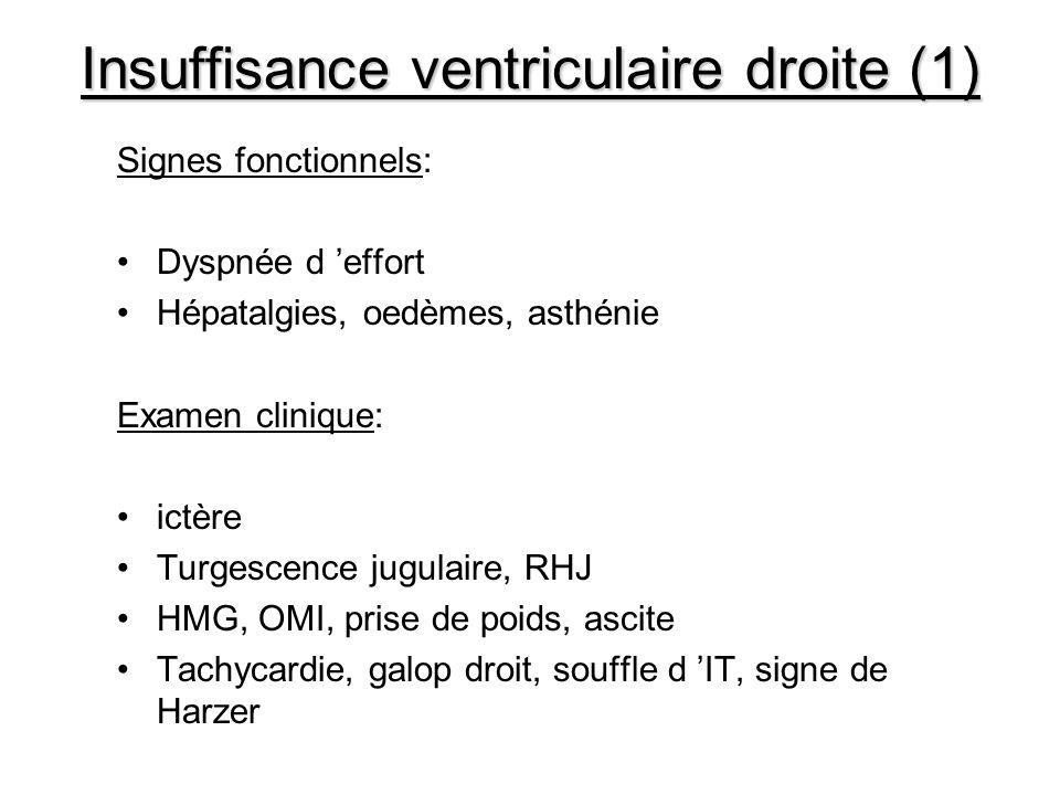 Insuffisance ventriculaire droite (1)