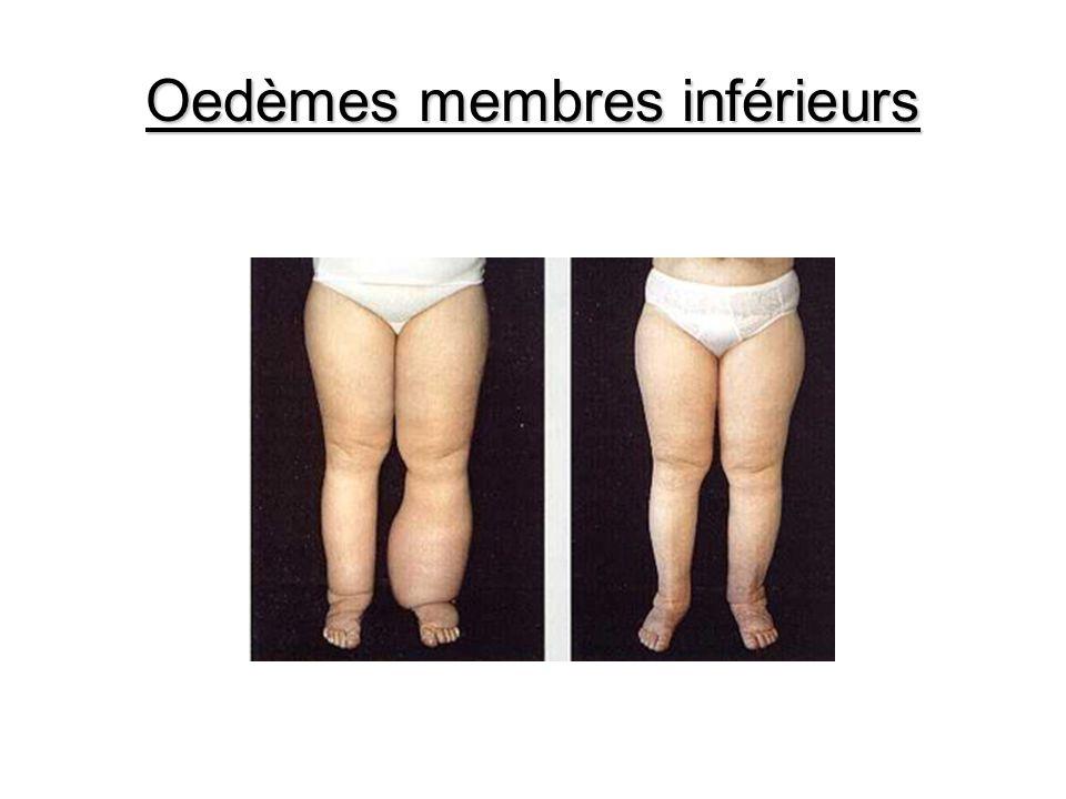Oedèmes membres inférieurs