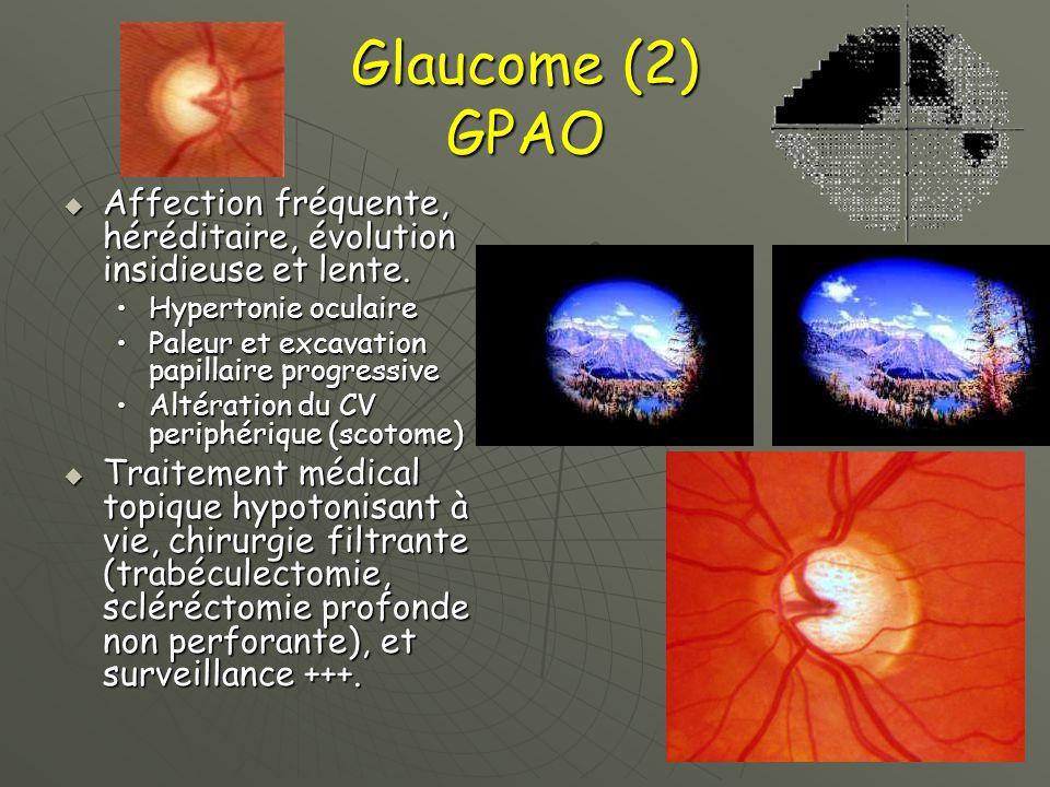 principales pathologies en ophtalmologie