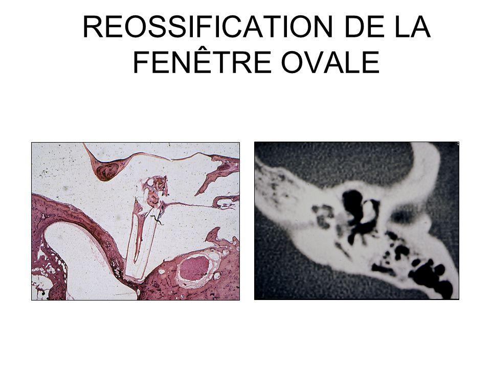 Christian martin bernard fraysse ppt video online for Fenetre ovale oreille