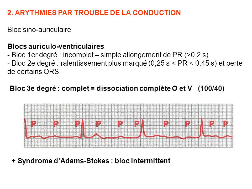 2. ARYTHMIES PAR TROUBLE DE LA CONDUCTION