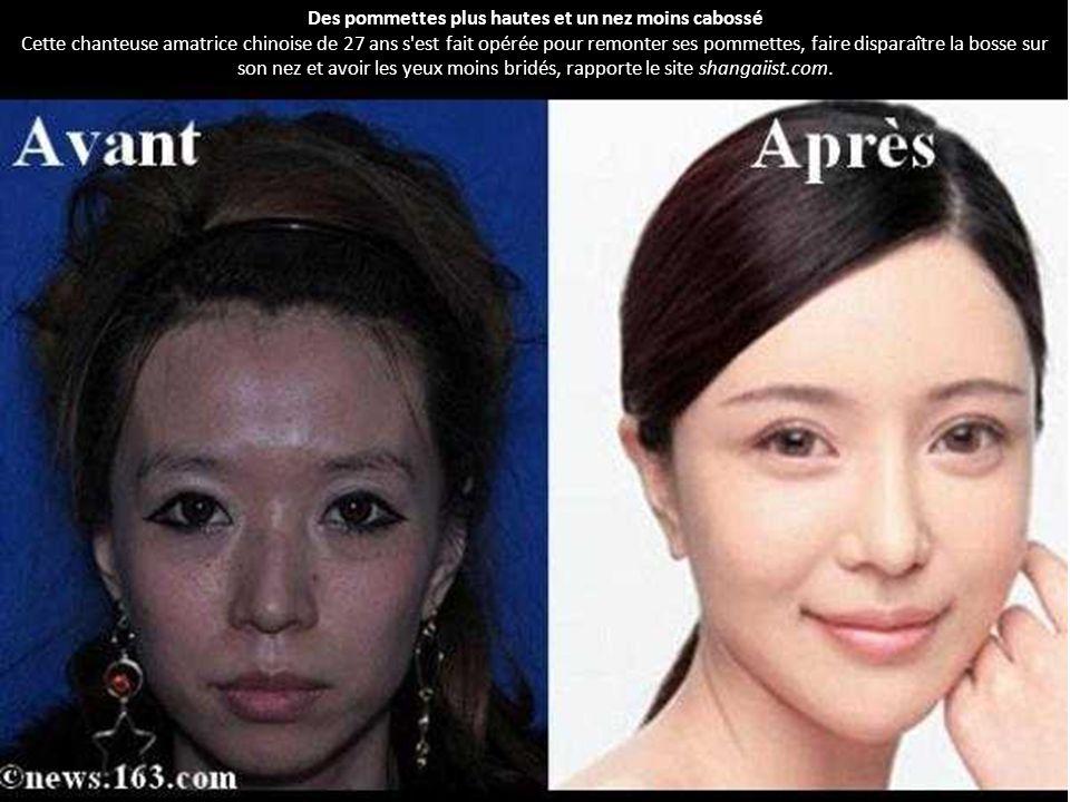 Avant apr s incroyable de chinoises qui veulent ressembler des europ ennes de nombreuses - Bosse sur le nez apres coup ...