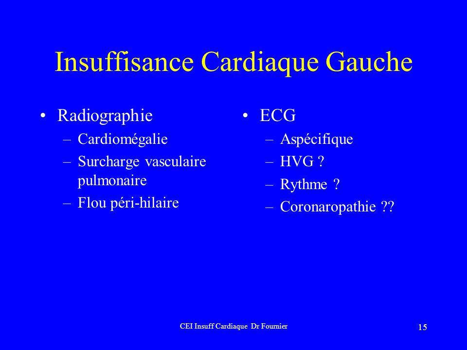 Insuffisance Cardiaque Gauche
