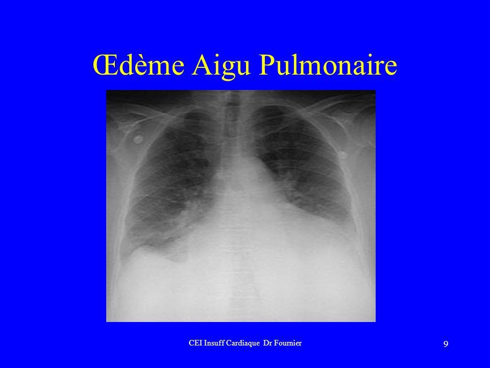 CEI Insuff Cardiaque Dr Fournier
