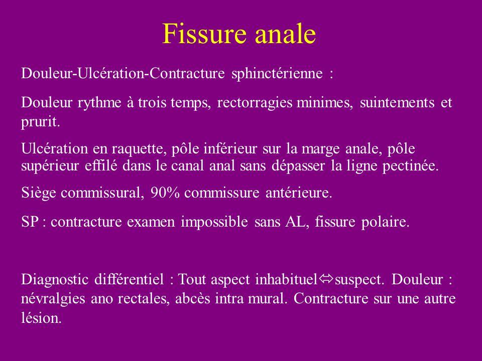 Fissure anale Douleur-Ulcération-Contracture sphinctérienne :