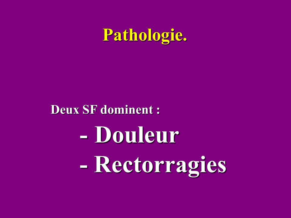 Pathologie. Deux SF dominent : - Douleur - Rectorragies