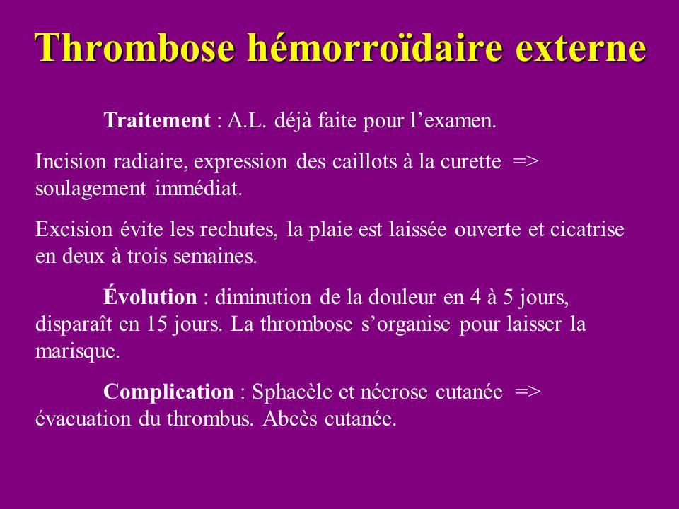 Thrombose hémorroïdaire externe