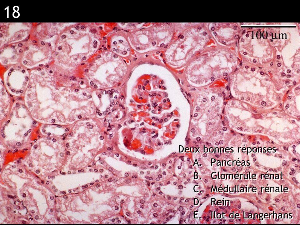 Réponse BC (muscle strié)